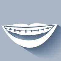 Invisalign in Scottsdale | Dr. Rick Dentistry