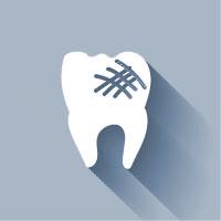 Porcelain Veneers in Scottsdale | Dr. Rick Dentistry