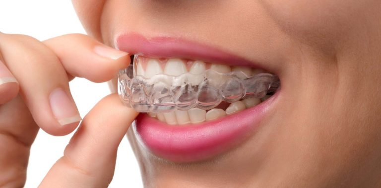 Invisaling woman with Straight teeth
