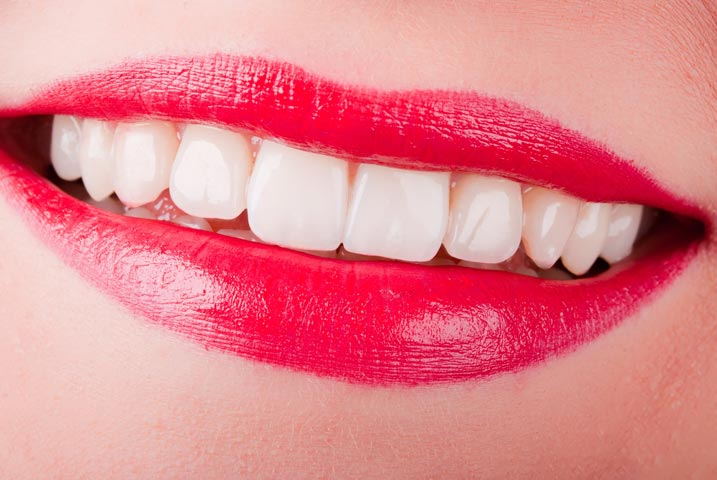 Can Porcelain Crowns And Veneers Stain Dr Rick Dentistry