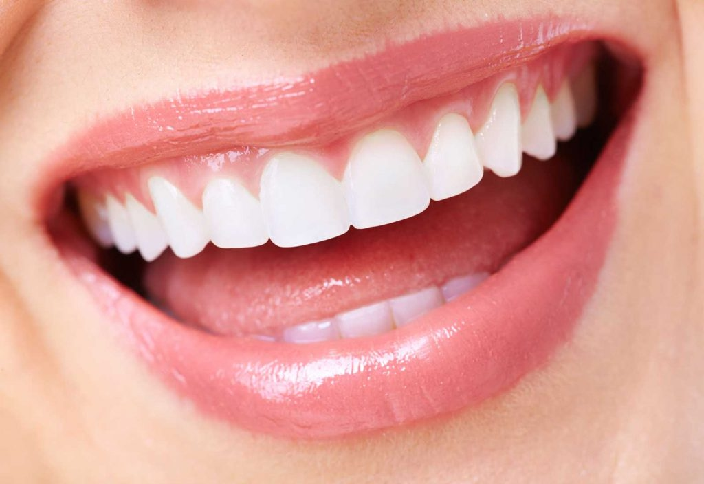 women's teeth smiling| about porcelain veneers