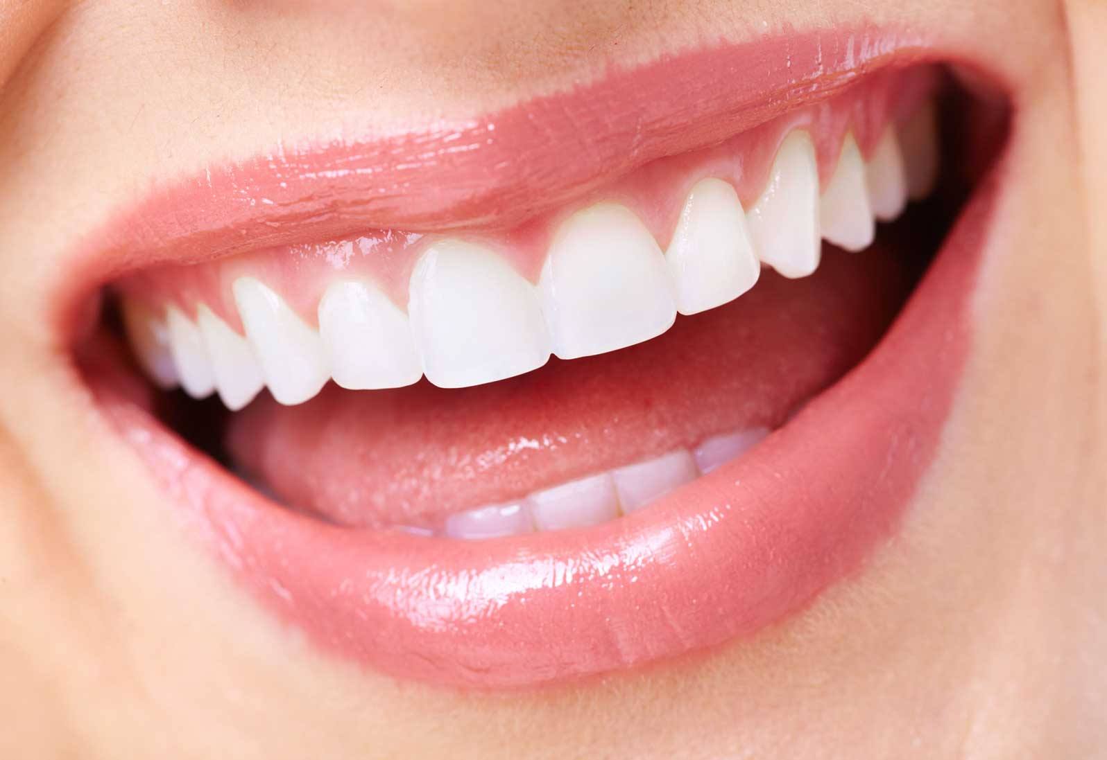 8 Things You Should Know About Porcelain Veneers - Dr. Rick Dentistry