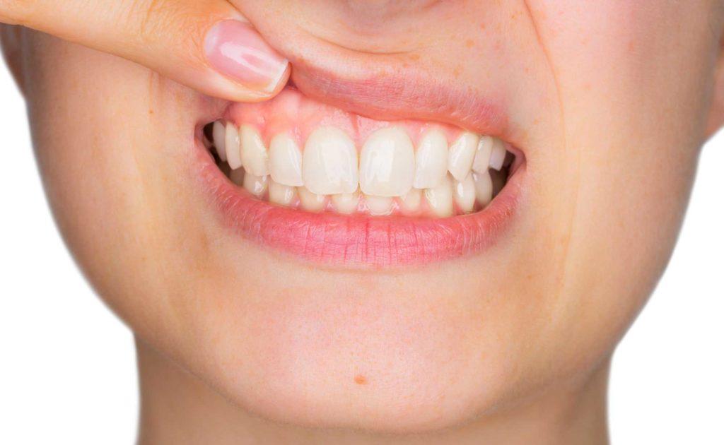 women checking her gums | Gum Health 101