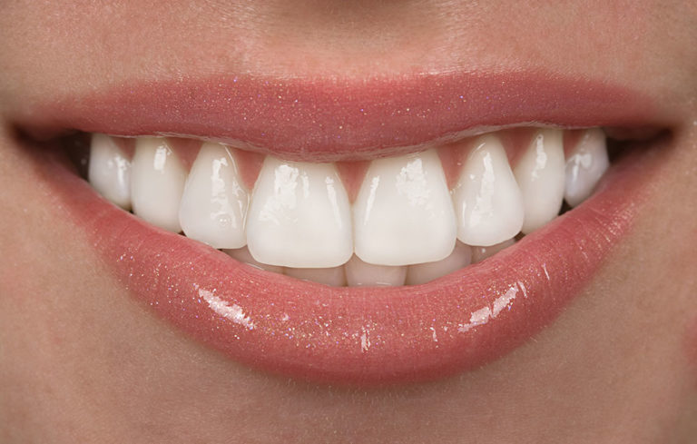 Can Porcelain Veneers Ruin your Real Teeth?