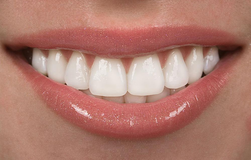 Can Porcelain Veneers Ruin your Real Teeth?