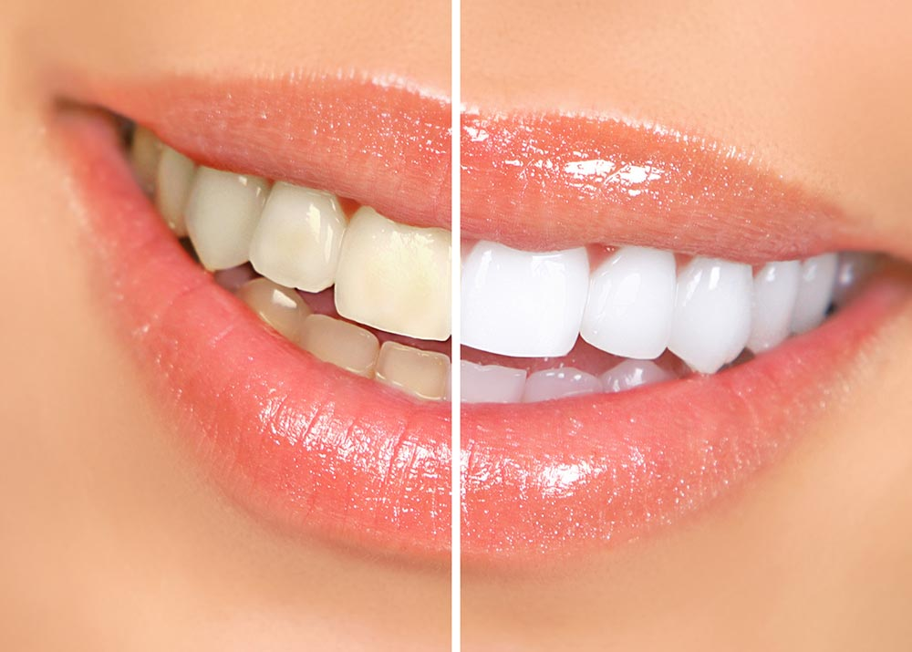 Uncovering Teeth Whitening Trends