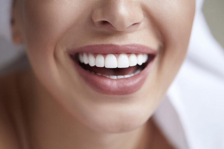 5 Oral Health Myths