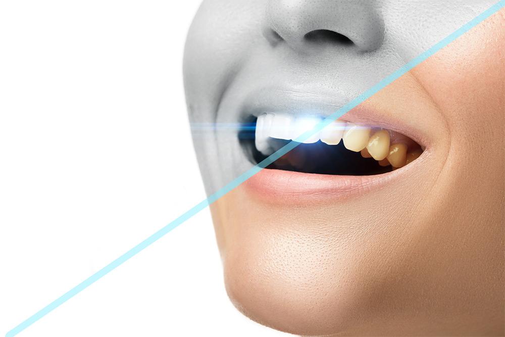 Why Choose Professional Teeth Whitening Over OTC Teeth Whitening Kits?