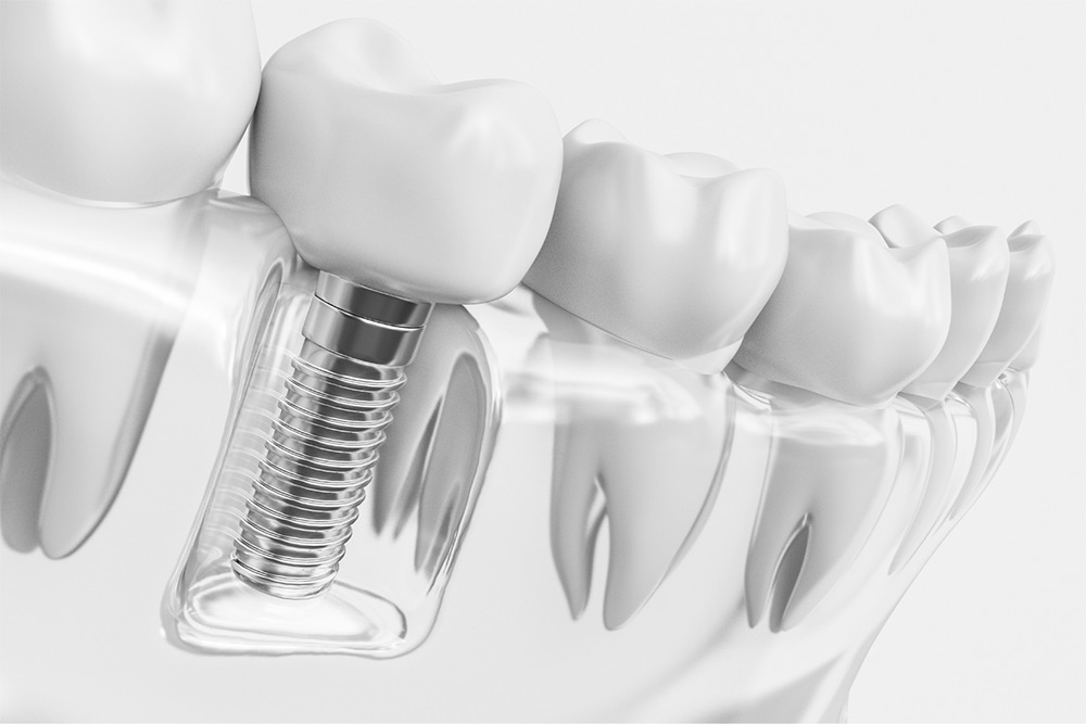 Dental Implants: A Safe and Permanent Way to Replace Missing Teeth